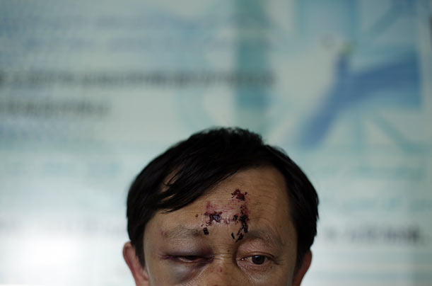 Huan Chen Jiang is treated for injuries sustained during riots in Urumqi, Xinjiang province, China.