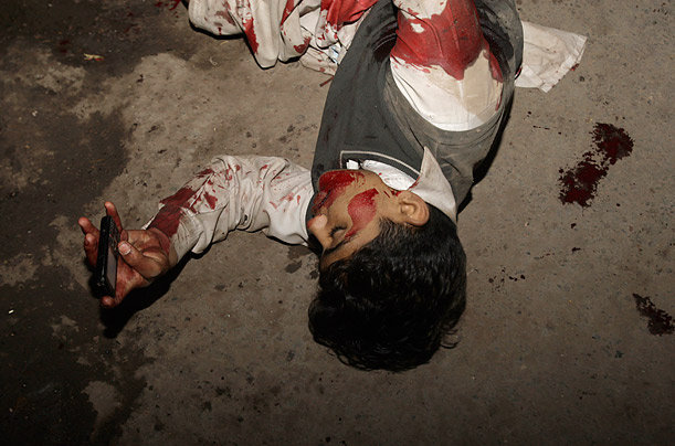 An injured Pakistani boy lays on the ground, mobile phone in hand, at the site of a suicide bombing in Lahore, Pakistan.